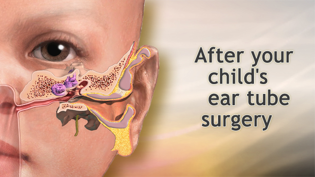 recovery time for ear tube surgery in adults