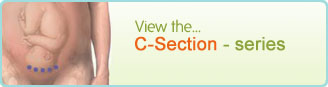 C-Section - series
