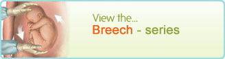 Breech - series