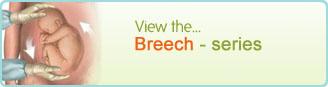 Breech - series