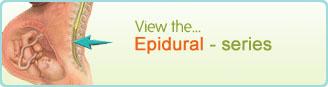 Epidural - series