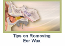 earwaxremovaltips