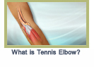 tenniselbow
