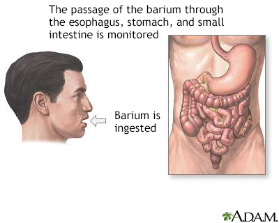 Barium ingestion
