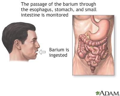 Barium ingestion