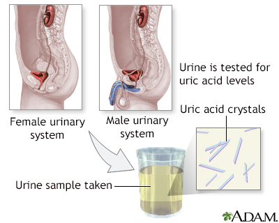 Uric acid test