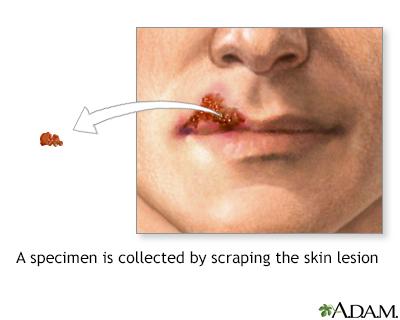 Cultivo de una lesión viral