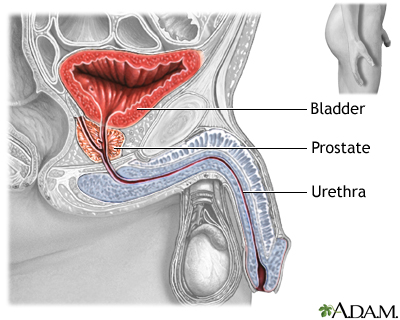 Prostatectomy - Series