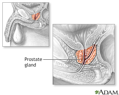 Prostate gland