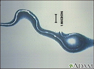 Lyme disease organism, Borrelia burgdorferi