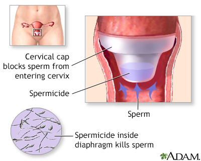 Cervical cap
