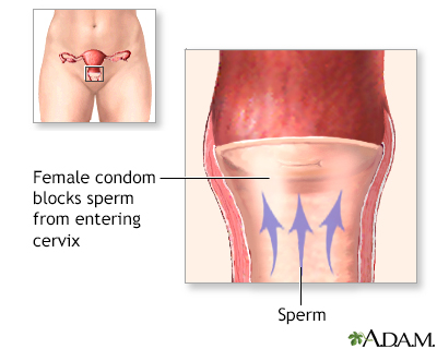 Female Condom