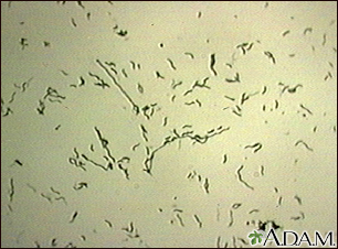 Campylobacter jejuni organism