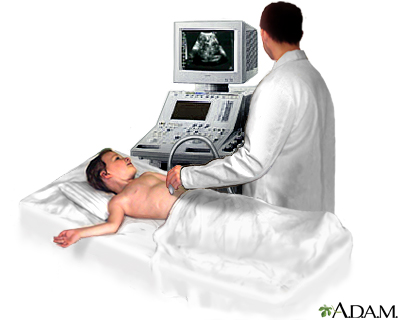 Abdominal ultrasound