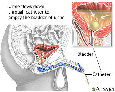 Bladder catheterization, male