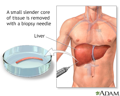 Liver biopsy