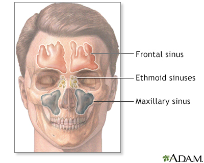 Sinuses
