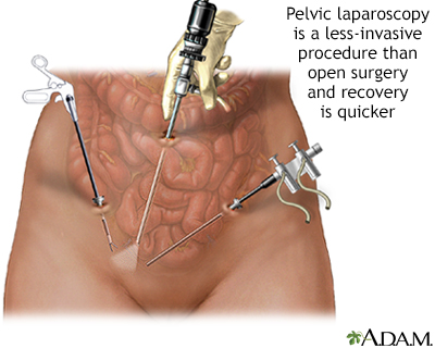 Pelvic laparoscopy