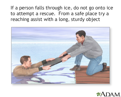 Drowning rescue on ice, board assist