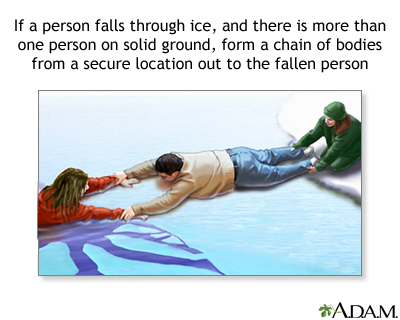 Drowning rescue on the ice, human chain