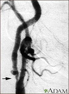 Carotid stenosis, X-ray of the right artery