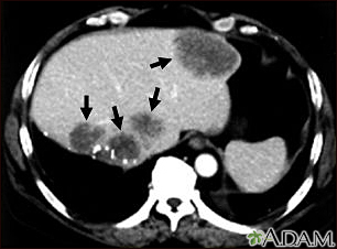 Liver metastases, CT scan