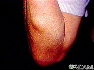 Lipoma - arm