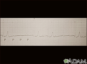 Atrioventricular block, ECG tracing
