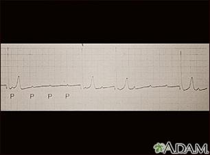 Registro del ECG durante un bloqueo auriculoventricular