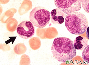Chronic myelocytic leukemia - microscopic view