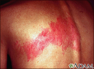 Herpes zoster (shingles) on the back