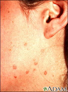 Warts, flat on the cheek and neck