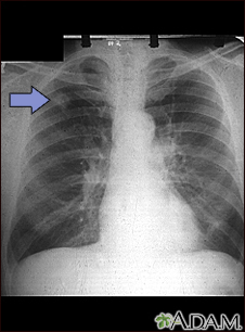 Adenocarcinoma - chest X-ray