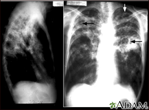 Tuberculosis, advanced - chest X-rays