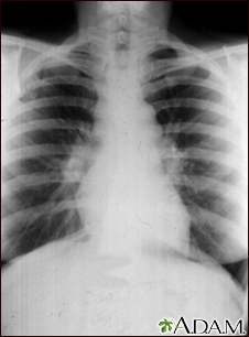Sarcoid, stage I - chest X-ray