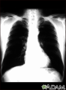 Bronchial cancer - chest X-ray
