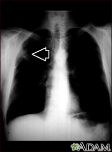 Lung mass, right upper lung - chest X-ray