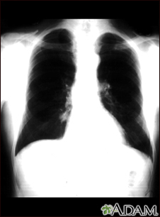 Lung nodule - front view chest X-ray