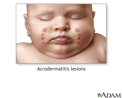 Acrodermatitis