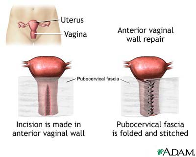Anterior vaginal wall repair