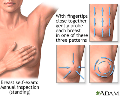 Breast self-exam
