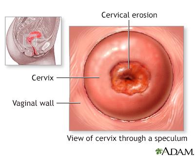 Cervical erosion