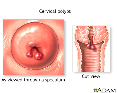 Cervical polyps