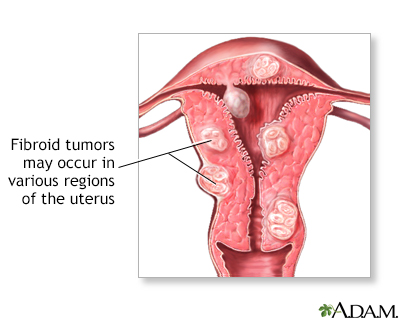 Uterine Fibroids