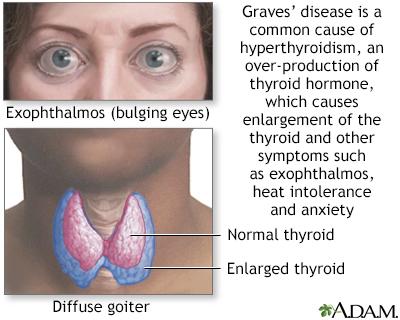 Graves' disease