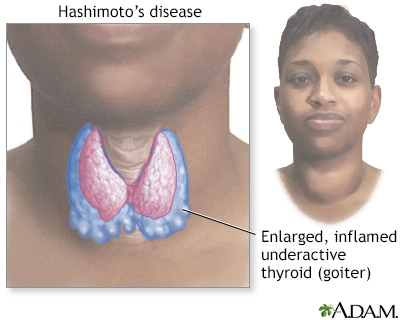 Hashimoto's disease (chronic thyroiditis)