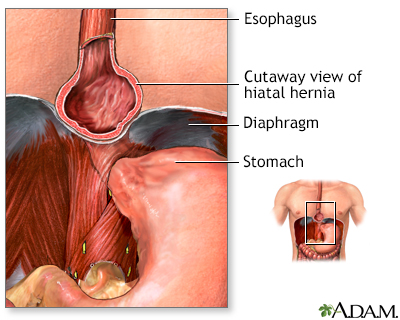 Hiatal hernia
