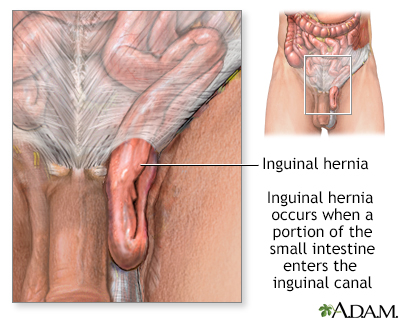 Inguinal hernia