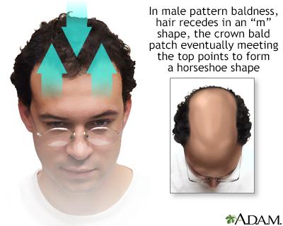 Calvicie de patrón masculino