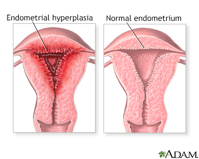 Abnormal menstrual periods
